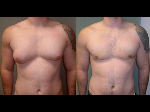 How to lose man breast fat exercises