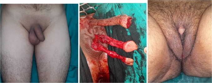 Gender reassignment surgery photos