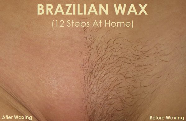 What to do after brazilian wax