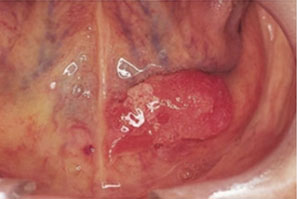 Gonorrhea oral sex