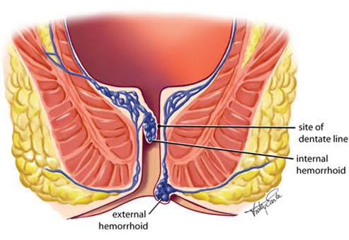 How does a hemorrhoid look