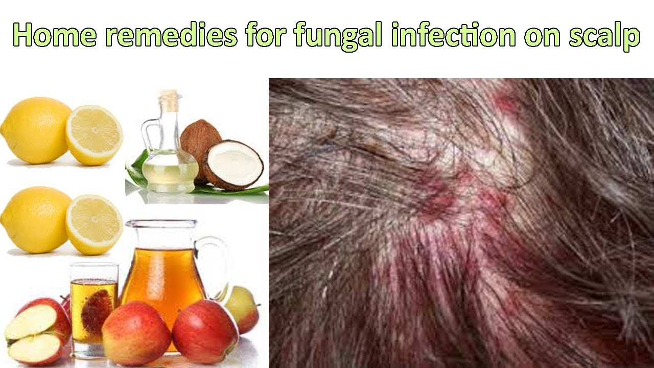 How to get rid of scalp fungus