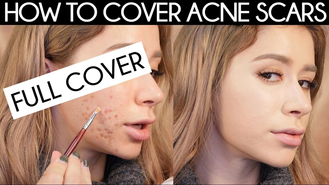 Full coverage concealer for acne scars